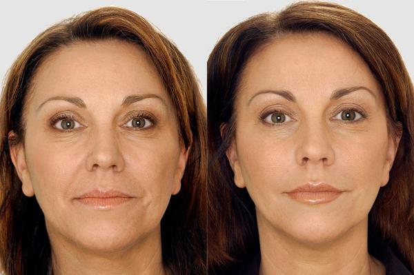 До и после выполнения упражнений Керол Мэджео