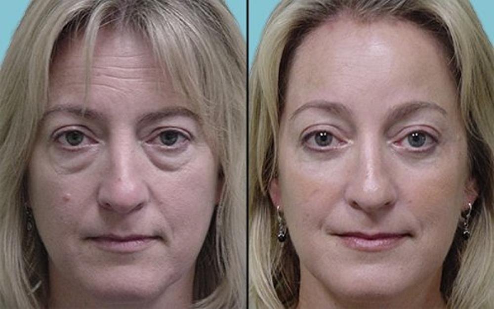 Примеры пластики глаз до и после