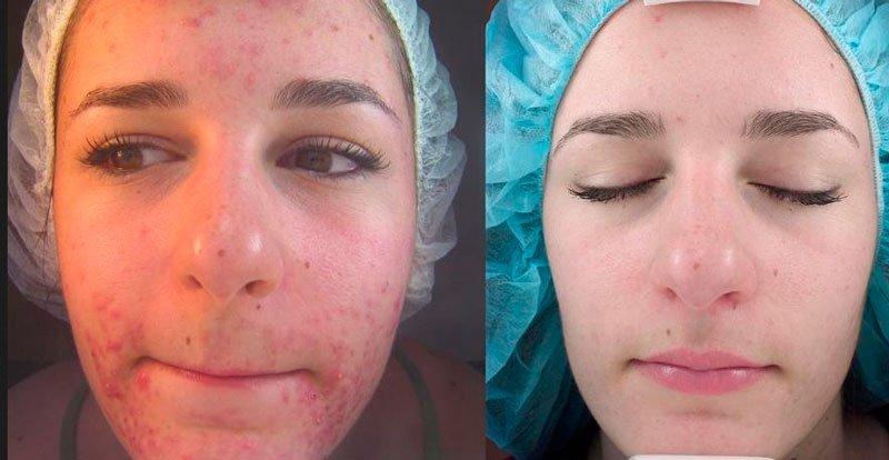 Кожа до и после процедуры