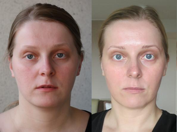 Гимнастика для лица, до и после