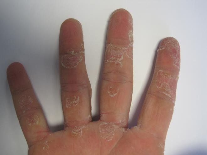 О состоянии кожи необходимо заботиться