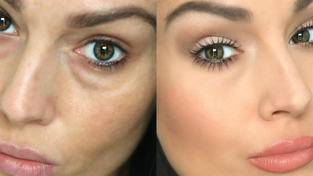 Маскировка отеков под глазами, до и после макияжа