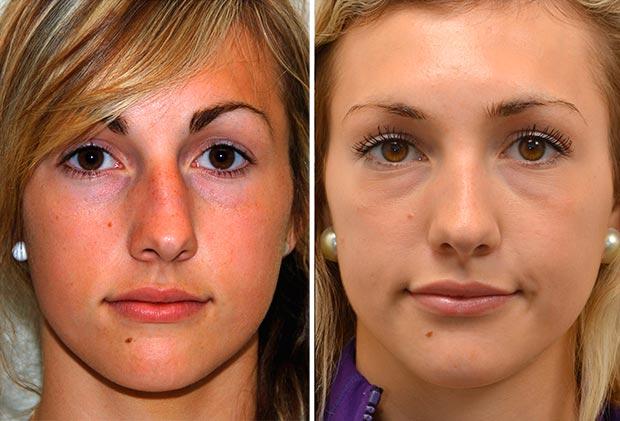 Коррекция кривого носа, фото до и после