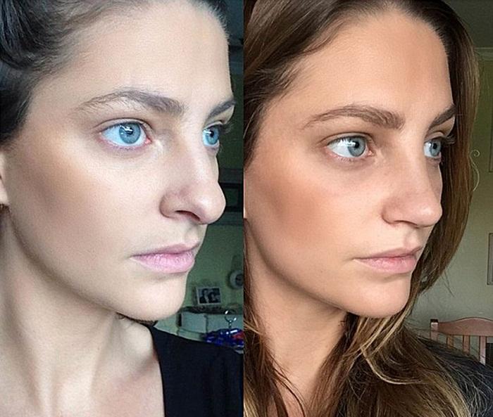 Исправление длинного носа, до и после