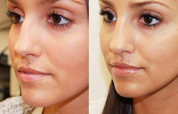 Устранение горбинки при помощи макияжа