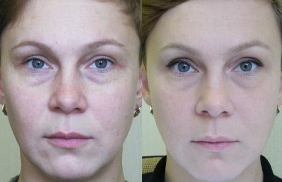 Фототермолиз, до и после