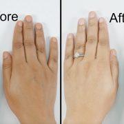 Маски способны улучшить состояние кожи