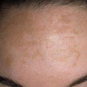 Пигментация на кожном покрове