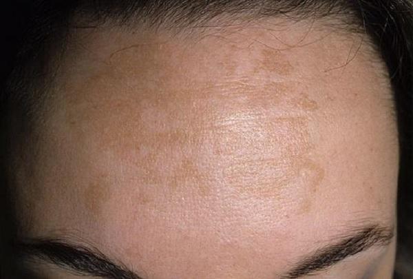 Пятна на лице коричневого цвета