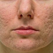 Неровная кожа лица – заметный косметический дефект, требующий устранения