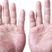 Потрескавшаяся кожа на руках – серьезная проблема