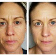 До и после массажа