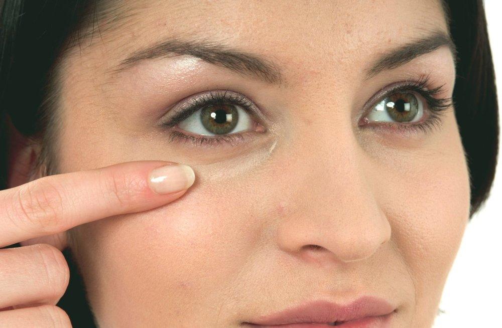 Как убрать мешки под глазами без операции