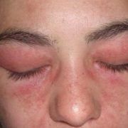 Ожог глаз после процедуры наращивания ресниц