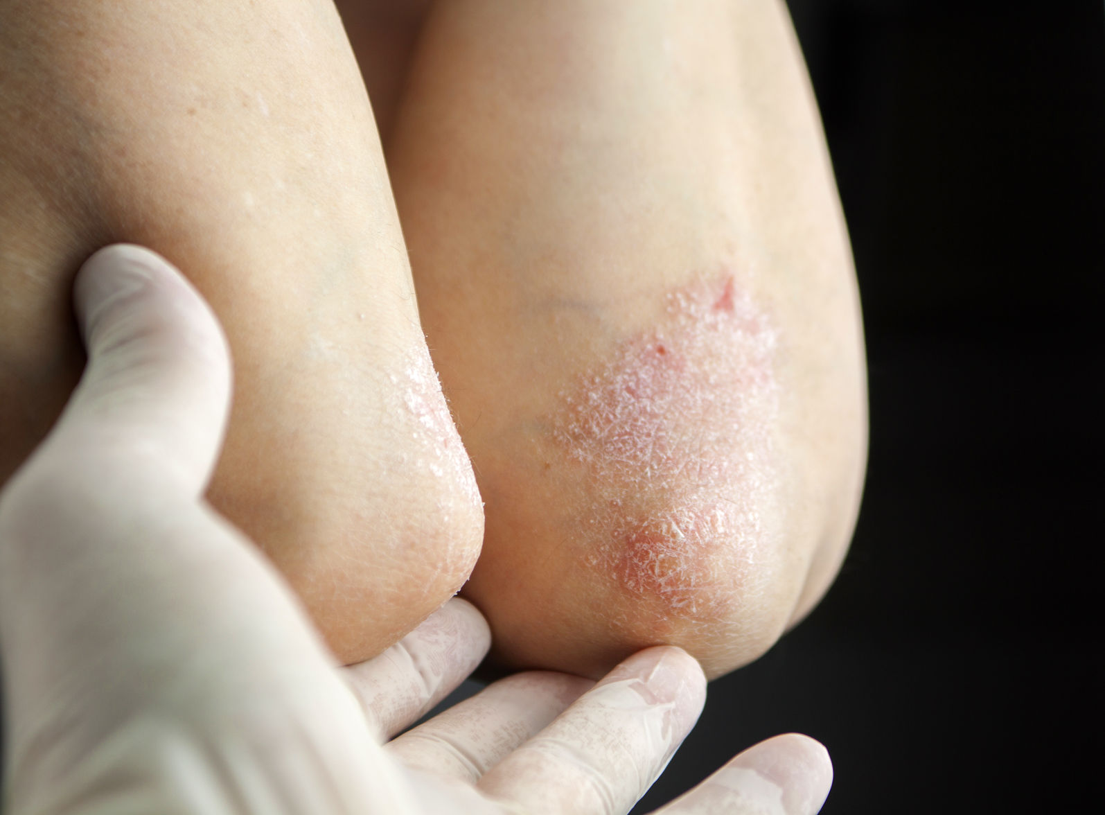 Сухие локти: причина и лечение. Почему на локтях очень сухая кожа?