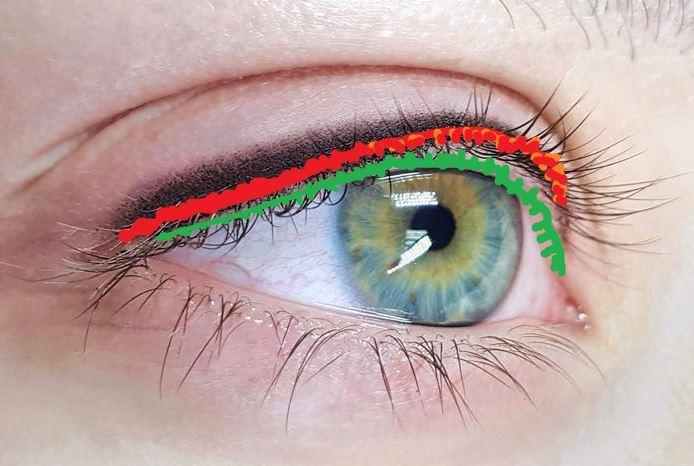 Межресничка показана красным цветом, слизистая – зеленым