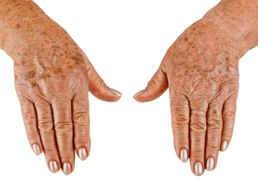 Пятна на коже при разных заболеваниях: причины, виды