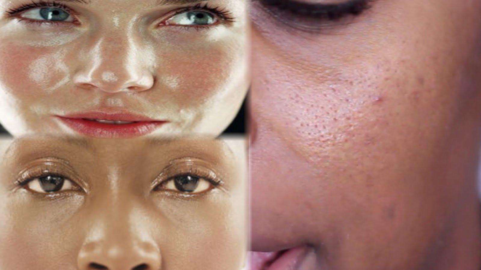 Жирная кожа склонна к воспалениям