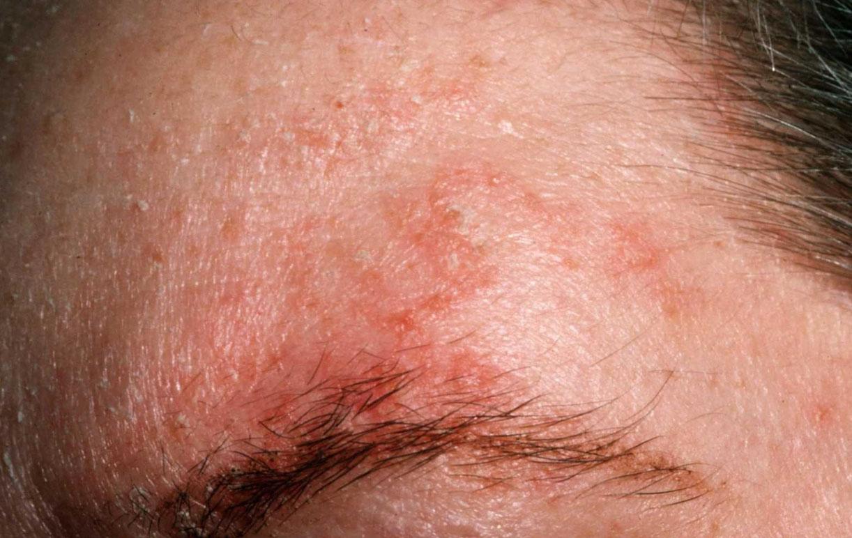 В случаях, когда покраснение вызвано себореей, предпочтительно избавиться от неё при помощи лекарств с кетоконазолом