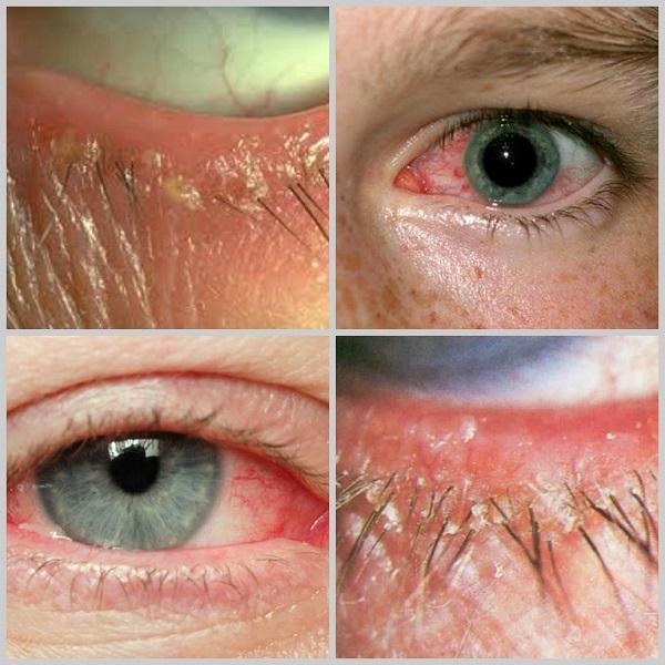 Демодекоз, или глазной клещ