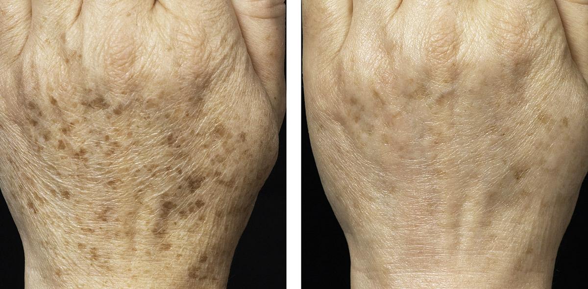 Фото до и после устранения пигментации с помощью лазера