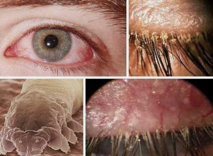 Проявления ресничного клеща