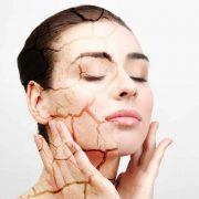 Сухая кожа причиняет серьезный дискомфорт