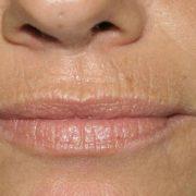 Морщины вокруг рта