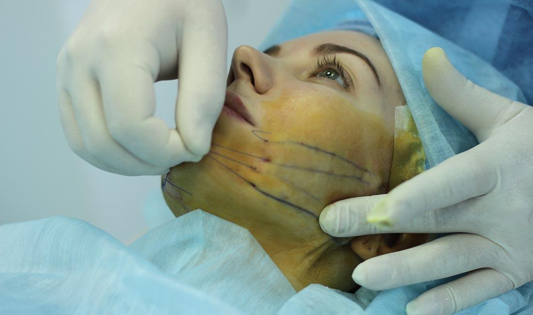 Хирургические методы удаления морщин
