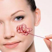 Как избавиться от венозной паутинки