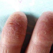 Трещины, расположенные на пальцах рук
