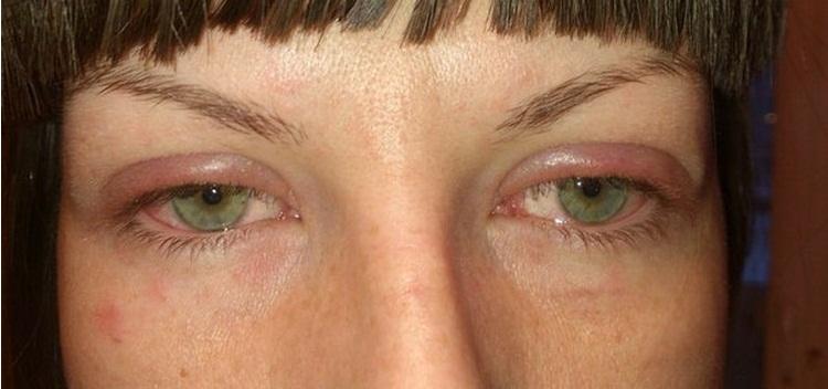 Аллергическая реакция на наращенные ресницы