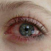 Химический ожог от наращивания ресниц, глаза начинают сильно краснеть