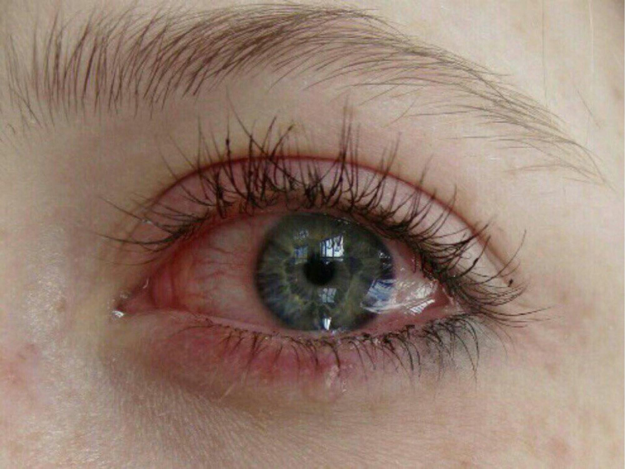 Глаза после наращивания ресниц