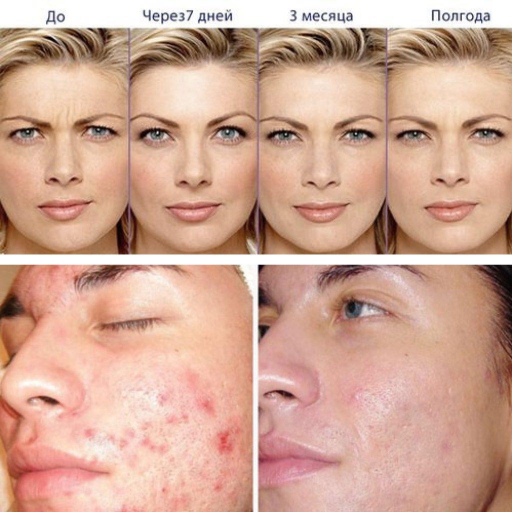 Улучшение кожи с помощью озонотерапии