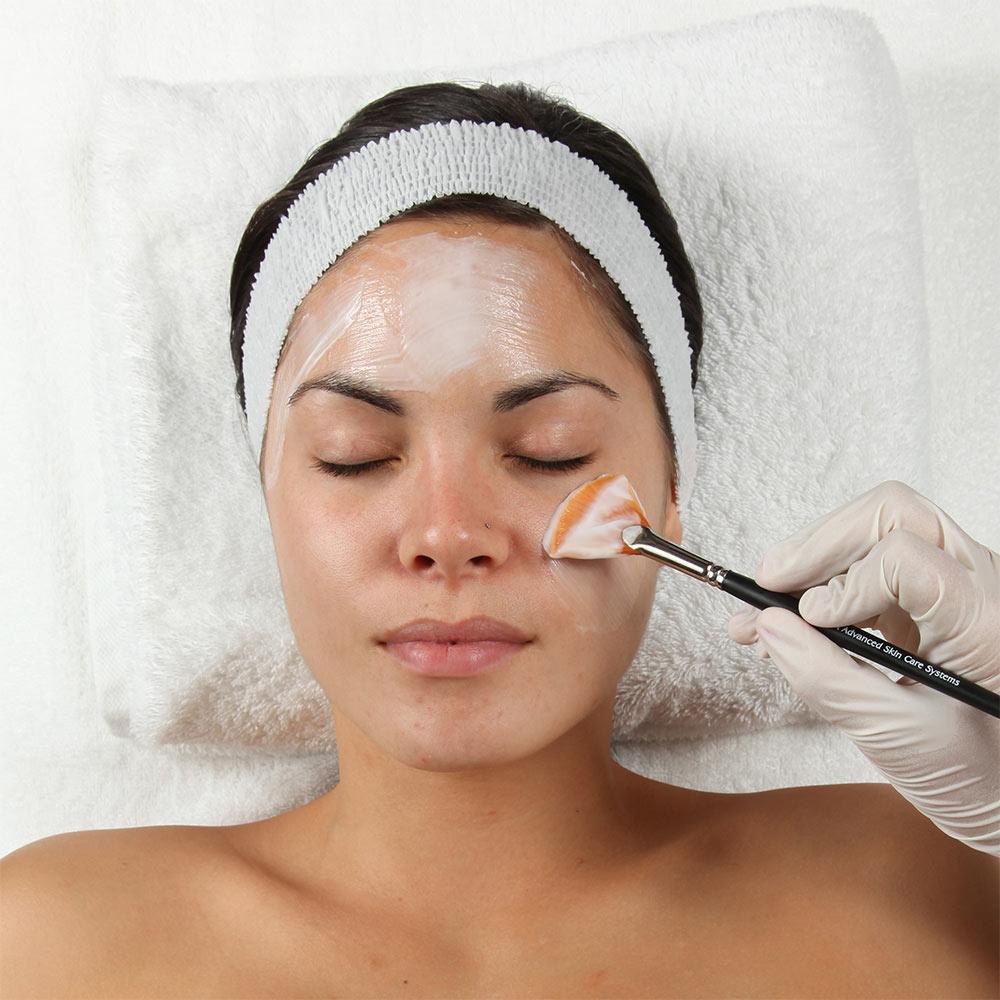 Лёгкий химический пилинг поможет уменьшить жирность и обновить кожу