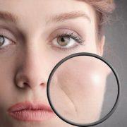 Носогубные морщины старят внешность