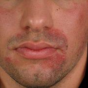 С раздражением после бритья хоть раз в жизни сталкивался каждый мужчина