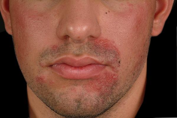 Раздражение на лице у мужчин как избавиться
