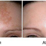 До и после процедуры по удалению пигментных пятен