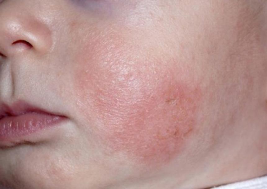 Шелушится кожа на лице, что делать?