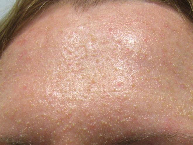 Как выглядит патология кожи