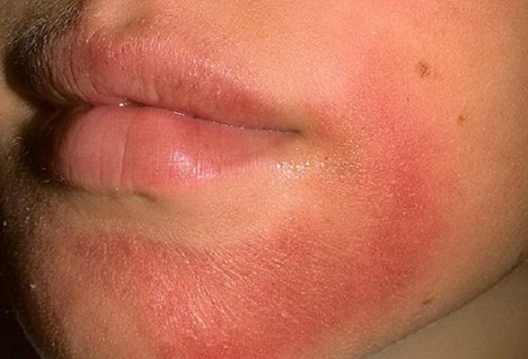 Как лечить красные пятна на лице (чешутся и шелушатся): что делать