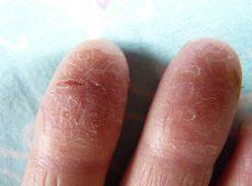 Лопается кожа на пальцах рук