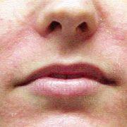 Шелушащаяся кожа лица у мужчин