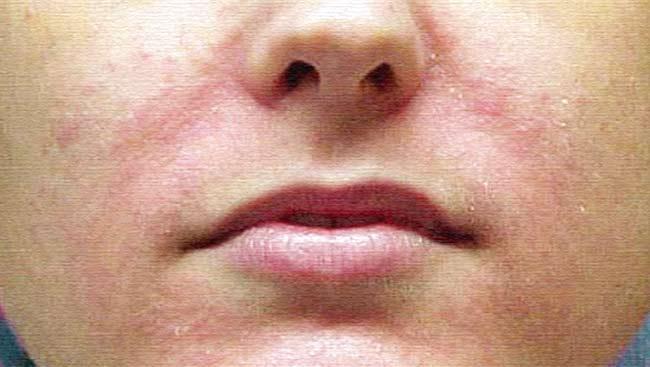 Крем от шелушения кожи на лице название, для детей, в аптеке, в домашних условиях, состав, отзывы.