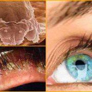 На ранних стадиях заболевание часто протекает бессимптомно