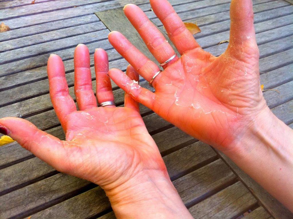 Неблагоприятная погода – причина проблем кожи