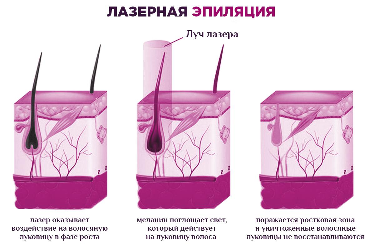 Что происходит с луковицей волоса при воздействии лазером