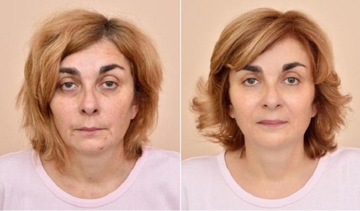 Эффект после нанесения макияжа